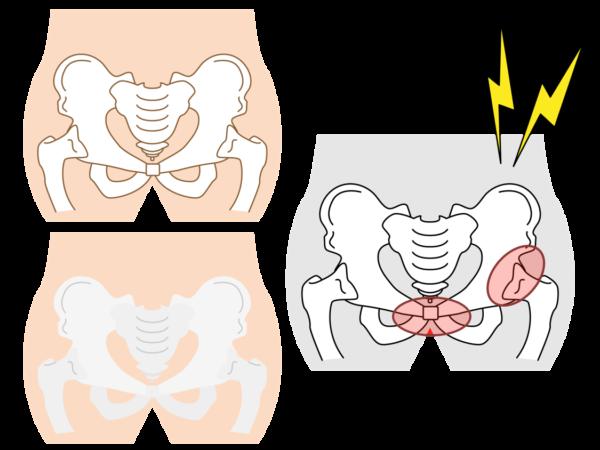 妊婦 足 の 付け根 痛み 臨月に足の付け根が痛くて歩けない!妊娠後期の股関節の激痛の原因と...